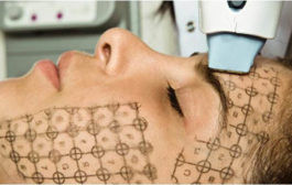 Bővítse szalonját kozmetikai gépekkel!