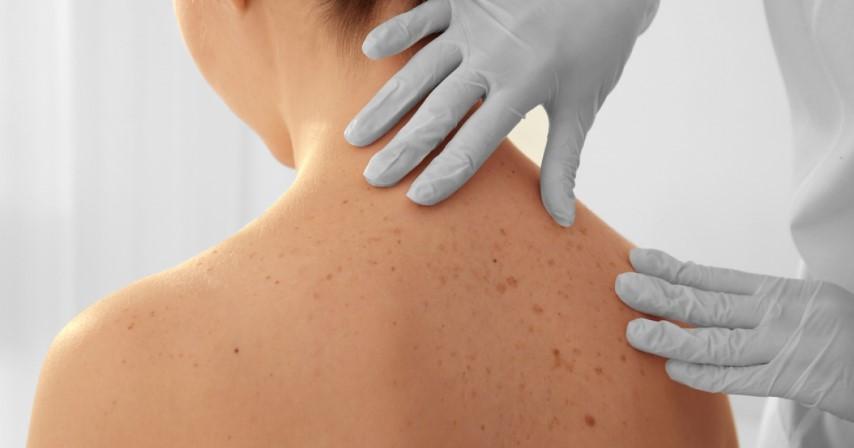A bőrbetegségek formái